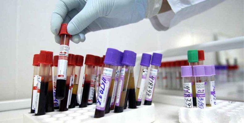 Раннее лечение ВИЧ-инфекции